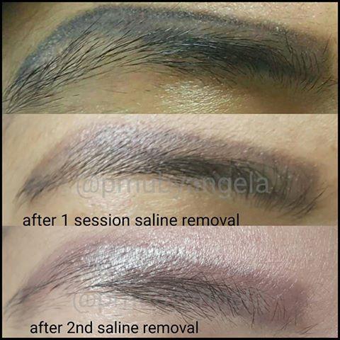 Advanced techniques in corrective permanent cosmetics for Saline tattoo removal